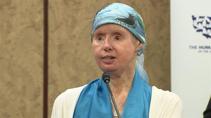Woman Traumatized By Chimpanzee Attack Speaks Out After 6