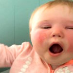 Sunscreen Leaves Baby With Second-Degree Burns