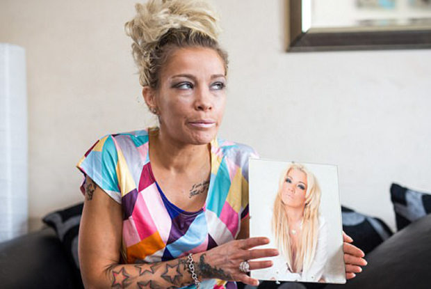 Former Model Struck By Incurable Disease, Controversial Cure