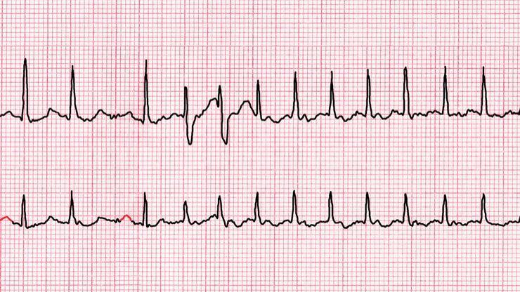 Heart Attack Warning Signs Story