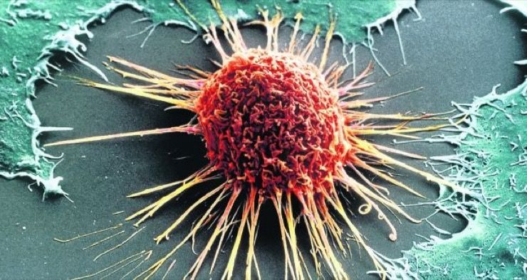 Common Types of Cancer Story