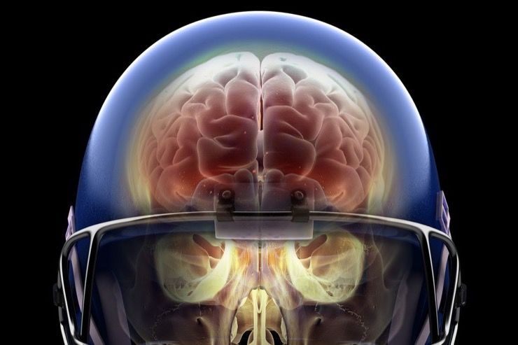 Football Concussions Story