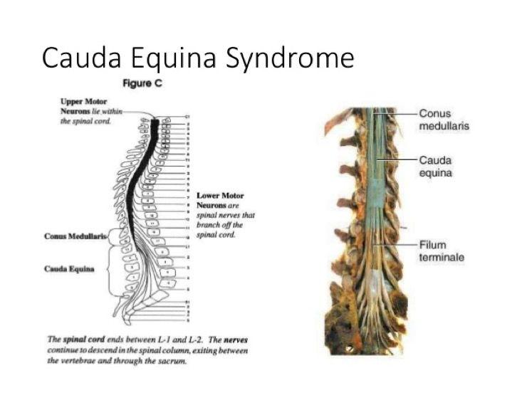 Sciatic Nerve Story