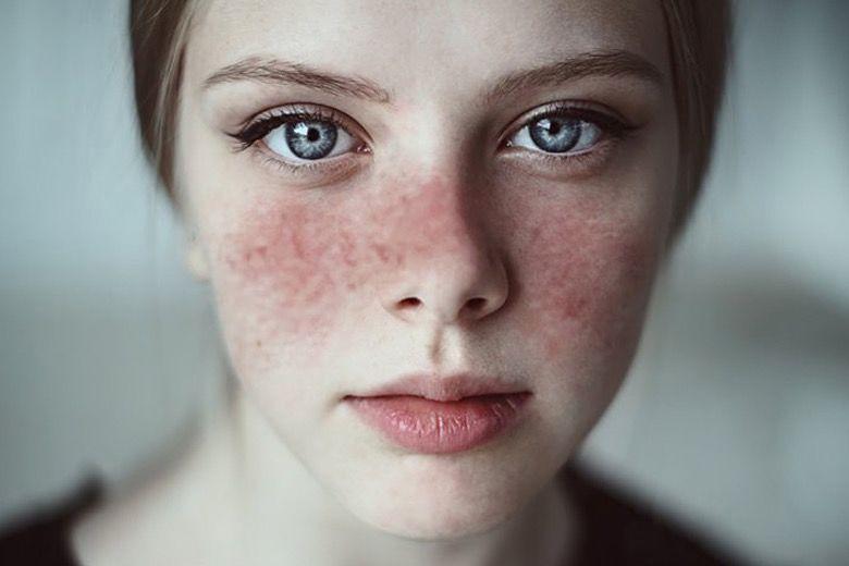 Lupus Story