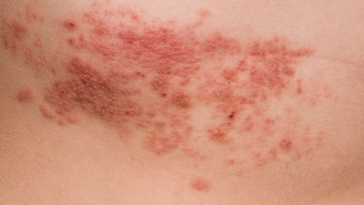 How Stress Can Cause Shingles And What You Can Do To Help
