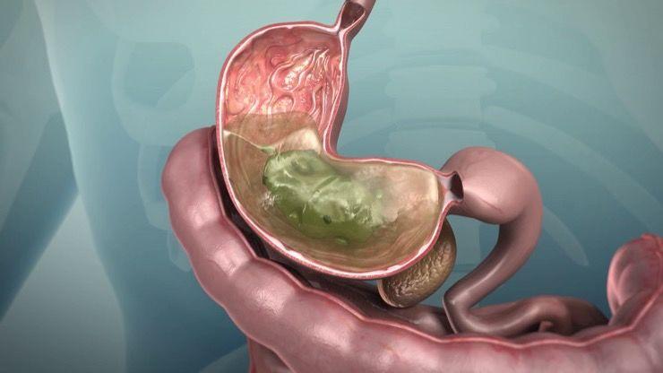 Peptic Ulcers Story