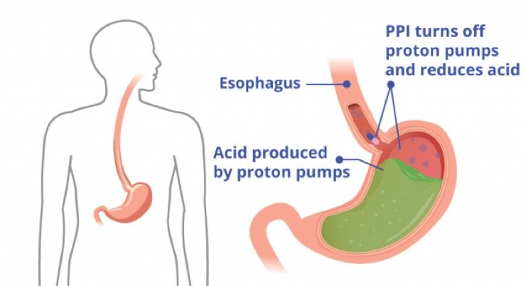 Peptic Ulcers Story