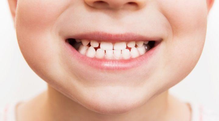 Hunter Rose Dentist Story